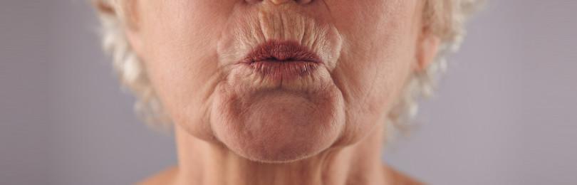 Морщины скорби: как избавиться массажем, упражнениями, пластикой