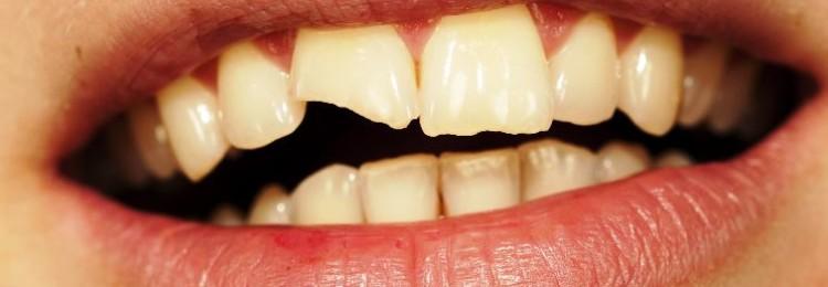 Примета если откололся зуб: что значит для взрослого, ребенка