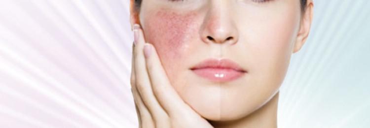 Озонотерапия лица от прыщей и купероза