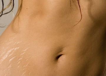 Крема от растяжек после похудения и другие средства