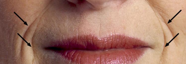 Как убрать морщины вокруг губ: гимнастика, массаж, народные средства