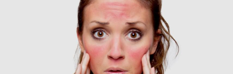 Опухло лицо после загара: что делать, как снять отек