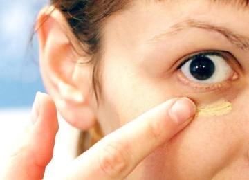 Почему вокруг глаз желтые круги