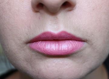 Как быстро убрать пигментацию над верхней губой