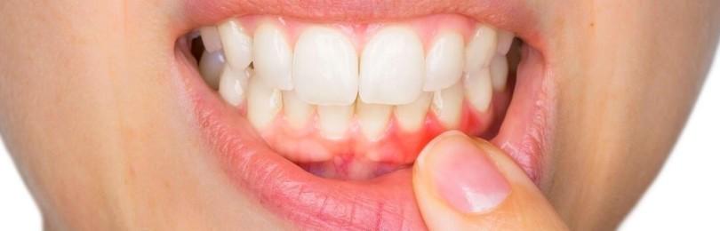 К чему примета, если чешутся зубы: толкование, что делать