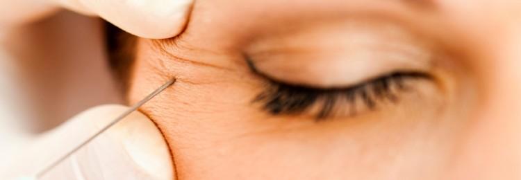 Ботокс вокруг глаз: отзывы, эффект