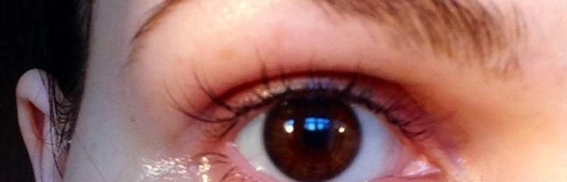 Витамин Е от синяков под глазами и отеков
