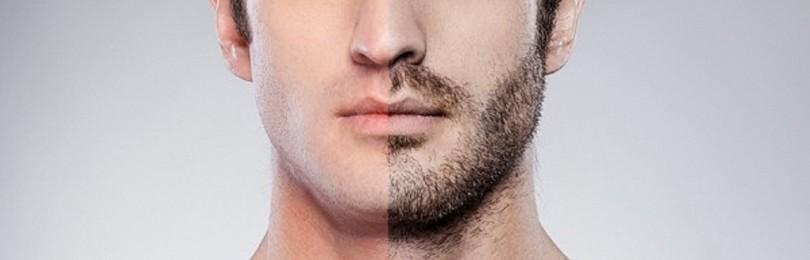 Шугаринг лица у мужчин: отзывы и видео